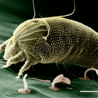 7 Terrible but Essential Facts You Must Know About Dust Mites and 3 Ways to Stop Them